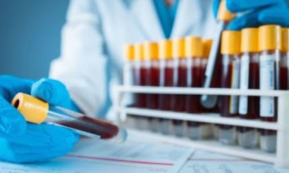 Nuovo test sierologico economico e facilmente eseguibile da tutti i laboratori di ricerca: lo studio